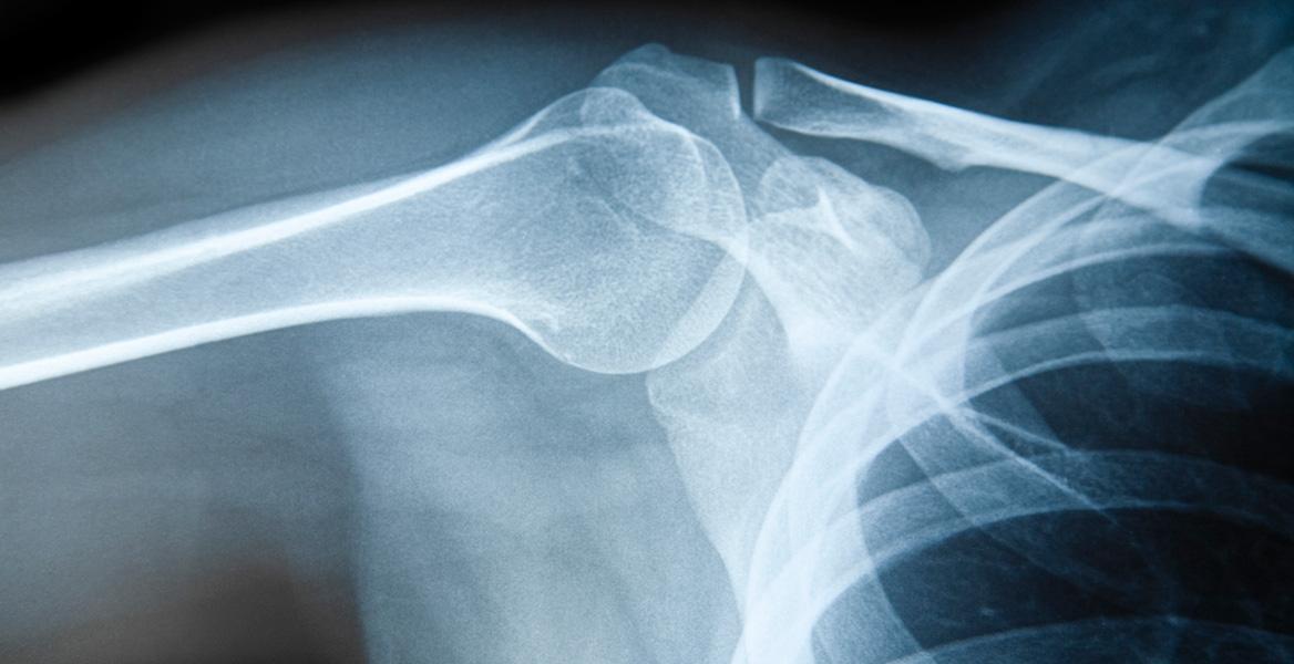 aop-injury
